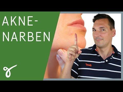 Aknenarben: Welche Behandlungen helfen tatsächlich? | Gerne Gesund