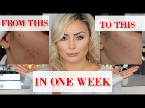 Nach einer Woche the Ordinary | in nur einer Woche | Hautprobleme | by Gözde Duran