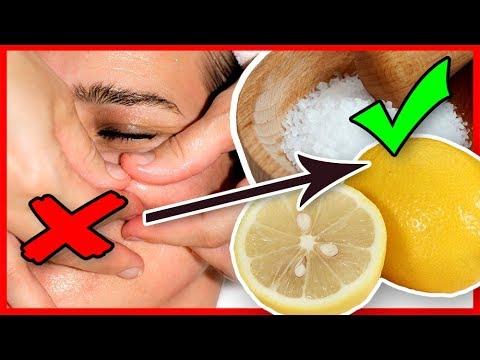 Pickel loswerden und Mitesser entfernen mit Zitrone Salz Peeling Hausmittel