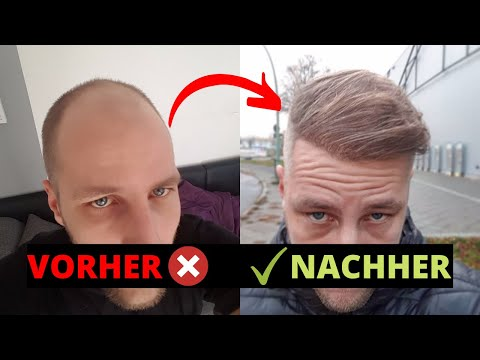 Haartransplantation Ergebnis nach 15 Monaten - Haarausfall geht weiter?