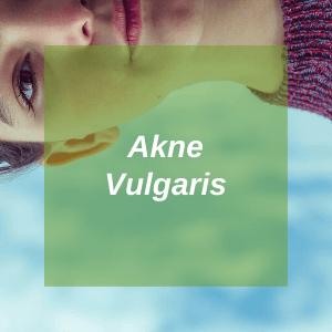 Akne-Vulgaris-Hub