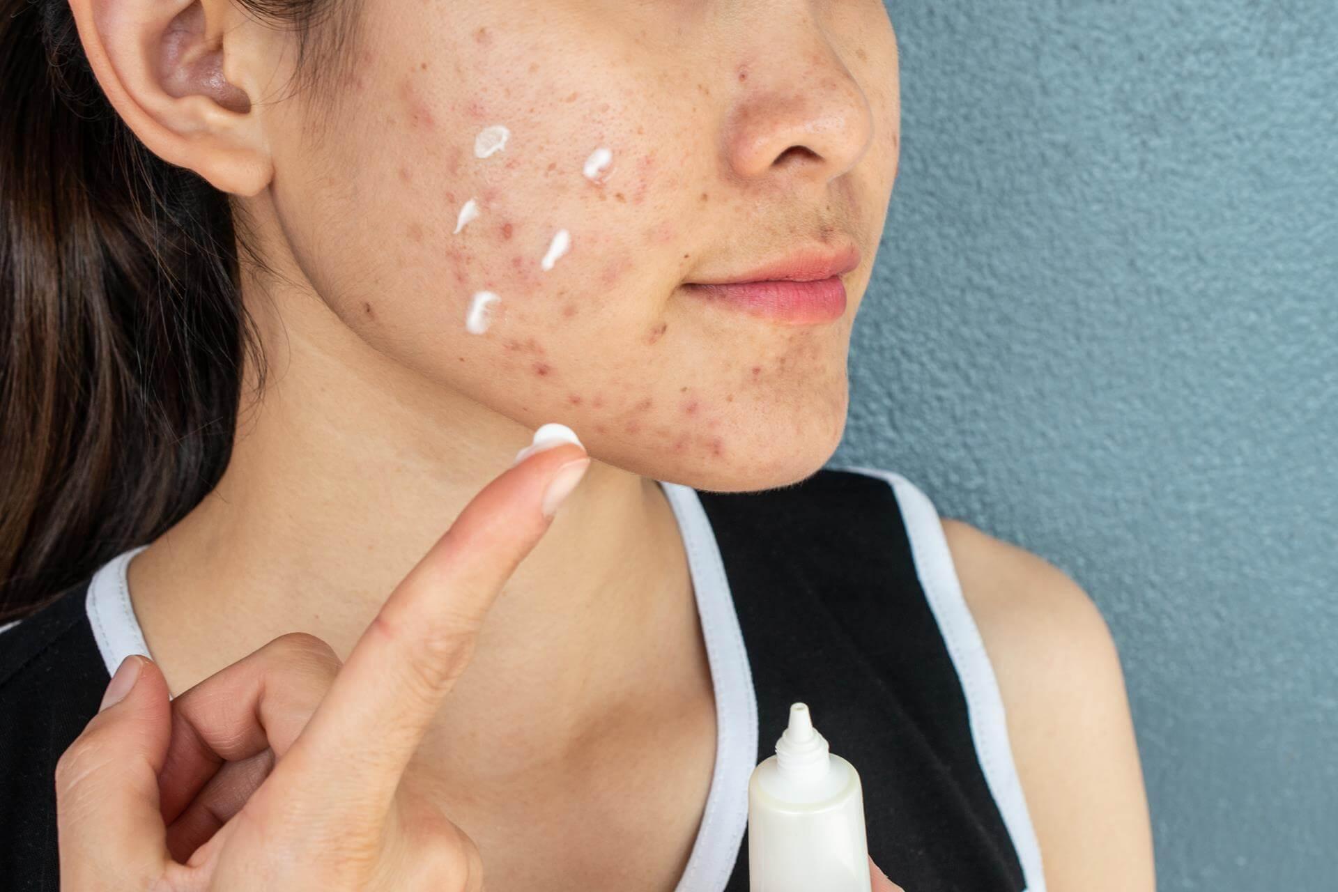 Creme gegen Aknenarben